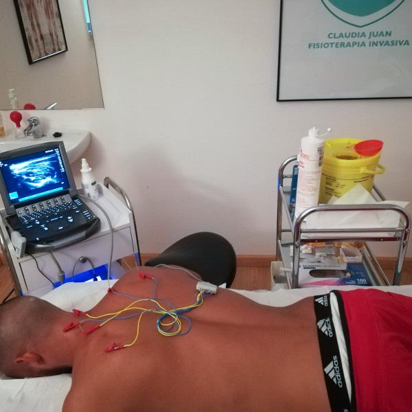 Neuromodulación percutánea ecoguiada Málaga - Claudia Juan Vigar
